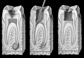 root_canals