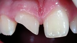 Root Canals Image